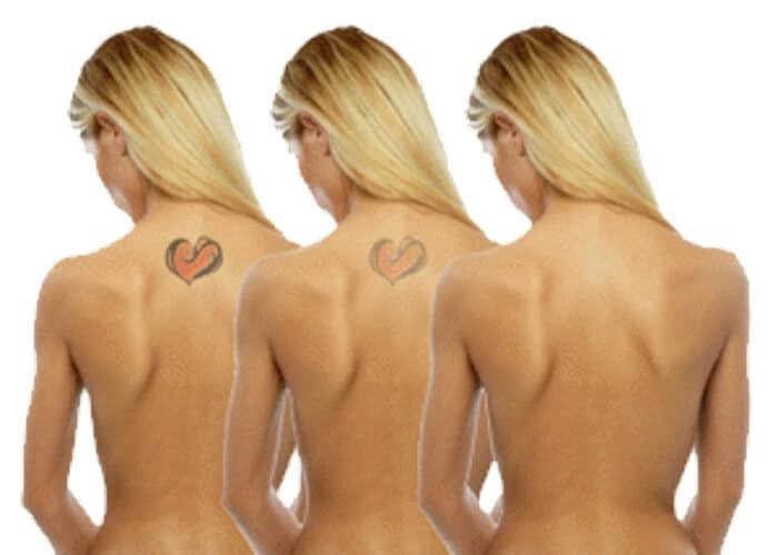Best effective painless laser tattoo removal Sydney