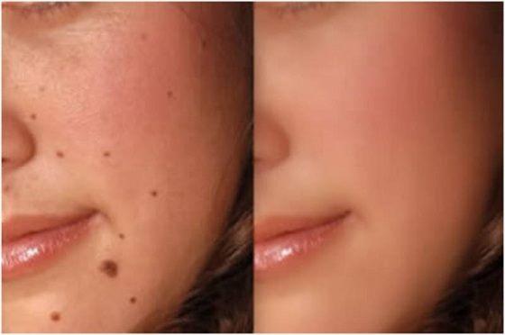 Best affordable safe YAG laser mole removal treatment North Shore Sydney
