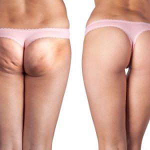 RF ultrasound cellulite removal therapy Sydney 1 best effect