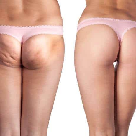 Best effective RF ultrasound cellulite removal treatment North Shore Sydney