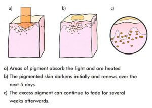 Effective safe IPL laser pigmentation removal treat Sydney