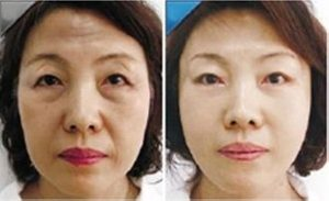 Anti-ageing non-surgical face lift Sydney #1 best facial