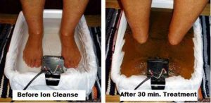 Ionic detox foot bath therapy clinic North Shore Sydney