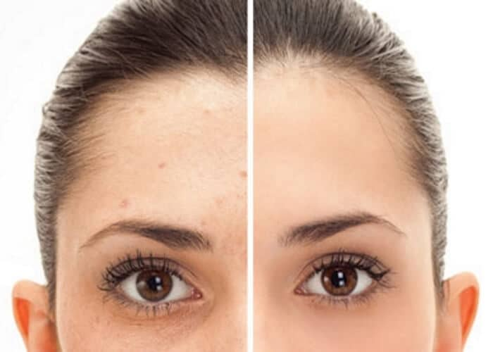 IPL laser-pigmentation Lane Cove 1700x500