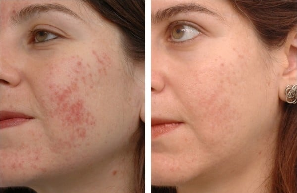 Remove acne scars Sydney Where to and how safe effective