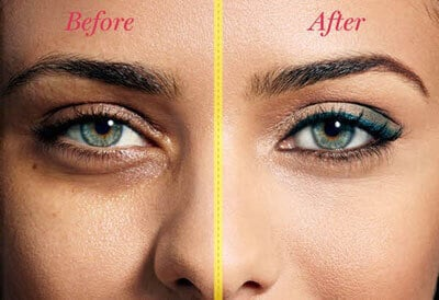 Xara_Skin_Clinic_Eye_Cream_before_and_after
