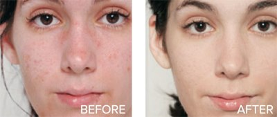 skin firming and toning acne removal age spot and sun spot removal