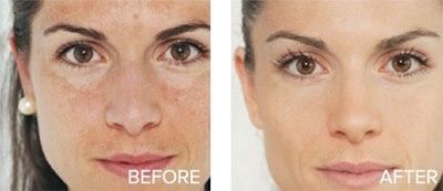 anti-wrinkle niacinamide wrinkle removal