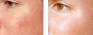 vitamin k drak circles face veins cream