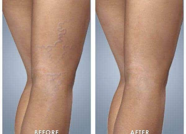 #1 best safe effective red vein removal treatment Sydney