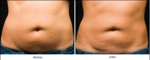 Fat freezing Treatments Sydney # 1 Fat freezing removal treatment in sydney