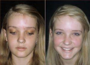 IPL laser birthmark removal Sydney #1 safe price get rid of
