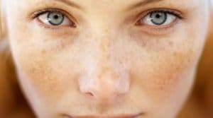 #1 effect safe IPL laser sun spot removal treatment Sydney