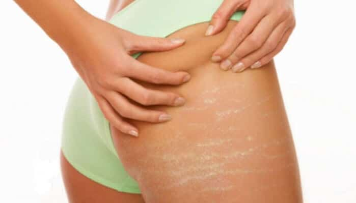 Surgical scar stretch mark removal Sydney best #1 go away