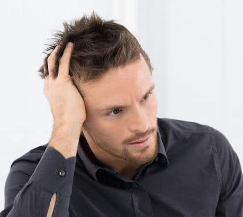 Men's hair loss in Sydney