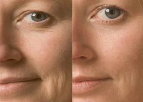 Anti Wrinkle Treatment Sydney