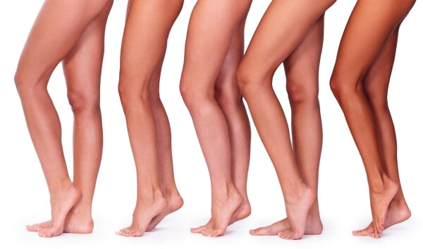 Safe #1 effect IPL laser leg vein removal treatment Sydney