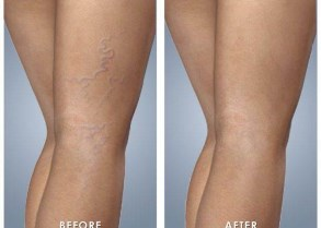 Best effective safe painless IPL laser red spider vein removal North Shore Sydney