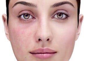 Best safe effective rosacea facial vein removal treatment North Shore Sydney