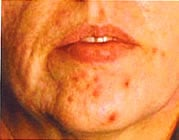 Laser Acne Treatment Sydney