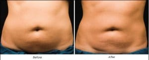 Non Surgical Invasive Fat Removal Cavitation Freezing Sydney