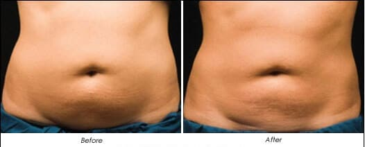 Fat removal cavitation freezing Sydney #1 best non surgical