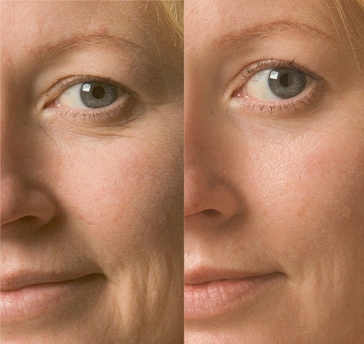 Wrinkle Removal Anti Wrinkle Treatment Sydney