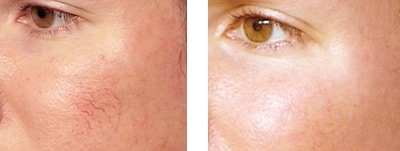 spider vein removal before and after Lane Cove