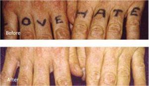 Safe effective laser tattoo removal experts Lane Cove Sydney