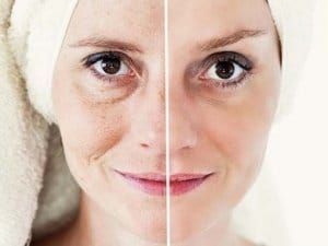 How can I look younger non-invasive face lift facial Sydney