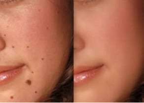 How where best safe mole blemish removal North Shore Sydney