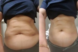 Fat cavitation vs weight loss Top 10 benefits Sydney