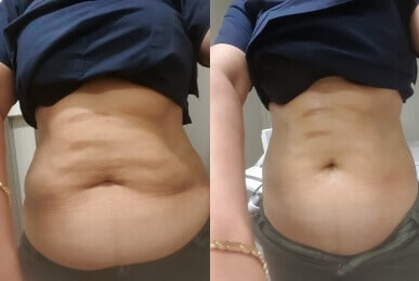 Fat cavitation vs weight loss Sydney-Top 10 benefits of fat cavitation Sydney