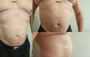 Top 10 benefits laser liposuction vs weight loss Sydney