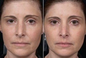 Anti ageing wrinkle removal face lift Thermagie-CPT skin tightening Mosman