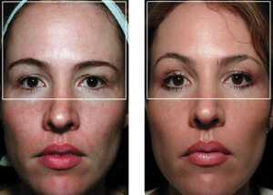 anti aging wrinkle remove face lift Roseville #1 Thermagie skin tightening