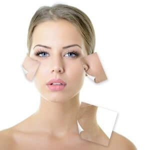Acne scar removal facial peel light Darlinghurst #1 therapy