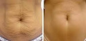 Fat freezing cryolipolysis lipo Greenwich cool sculpting #1