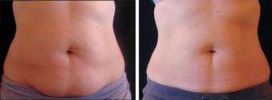 Fat freezing cryolipolysis lipo Riverview cool sculpting laser liposuction cavitation