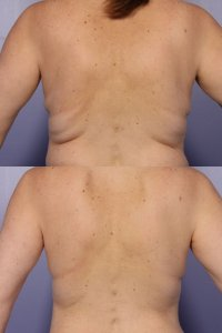 Fat freezing cavitation coolsculpting cryolipolysis laser liposuction Greenwich