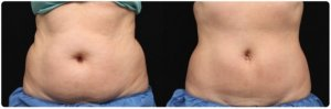 Fat freezing cavitation coolsculpting cryolipolysis laser liposuction Hunters Hill