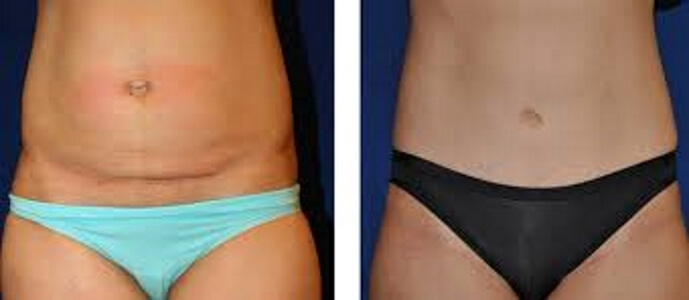 Fat freezing cavitation coolsculpting cryolipolysis laser liposuction North Sydney