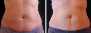 Fat freezing cavitation coolsculpting cryolipolysis laser liposuction Riverview