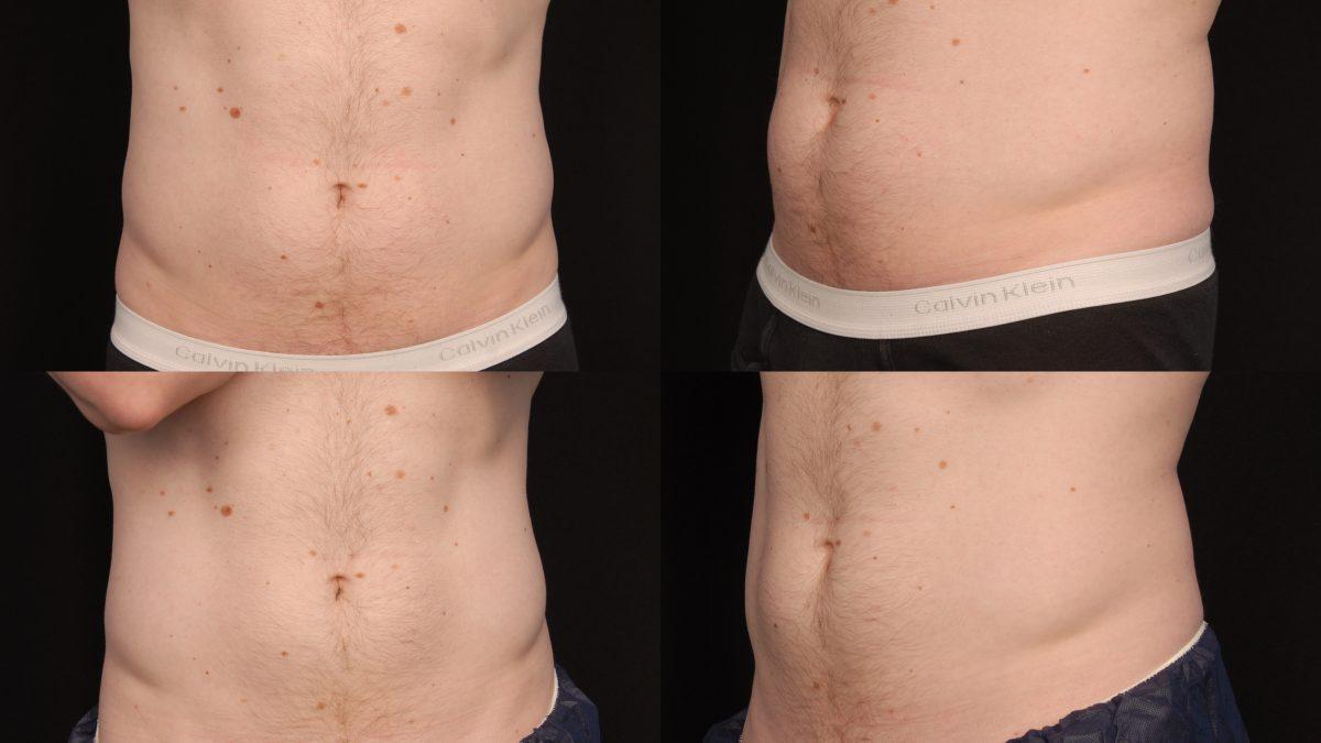Fat freezing cryolipolysis lipo Darlinghurst cool sculpting cavitation laser liposuction