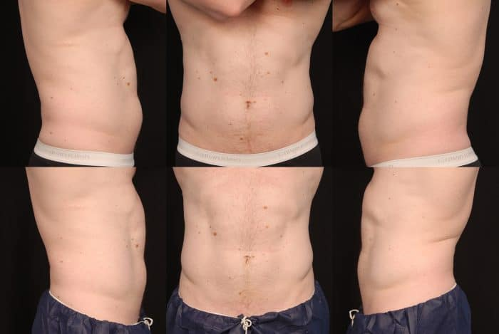 Fat freezing cryolipolysis lipo Vaucluse cool sculpting cavitation laser liposuction