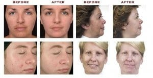 Aqua peel hydra dermabrasion facial Sydney Korean #1 great