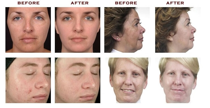Hydro diamond oxygen microdermabrasion North Shore Sydney