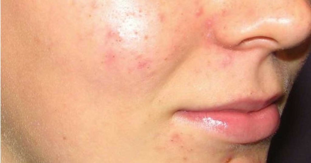 Are You Looking on How to Get Rid of Acne