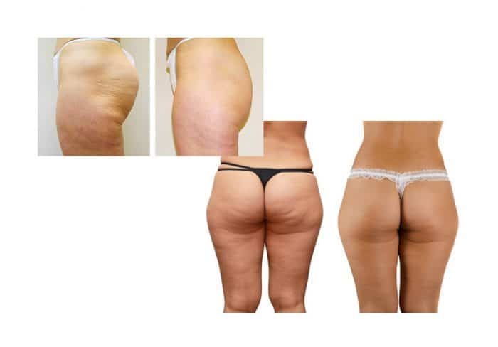 Fat freezing cavitation cool sculpting cryolipolysis laser liposuction Belrose