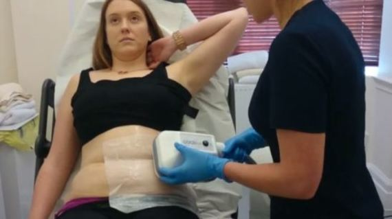 Fat freezing lipo cryolipolysis Palm Beach cool sculpting cavitation laser liposuction